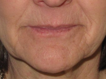 Lip Enhancement before 326039