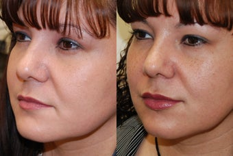 Lip Augmentation with Silikon-1000 before 351130