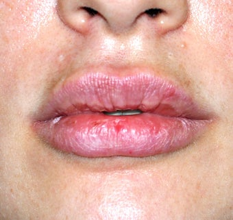 Lip Augmentation after 536185