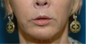 Lip lift + Chin implant + ArteFill after 522080