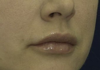 Lip Lift before 615879