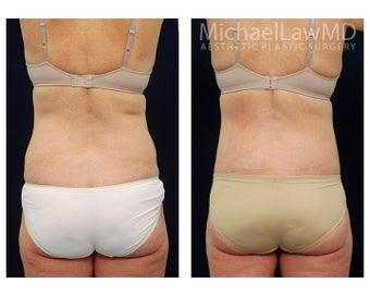 Liposuction after 397124