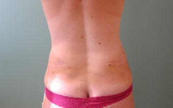 SMART Liposuction of Love Handles after 454442