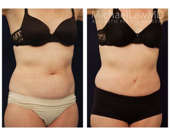 Liposuction after 495519