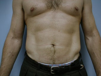 Male contouring liposuction after 590924