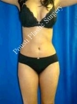 Liposuction after 607922