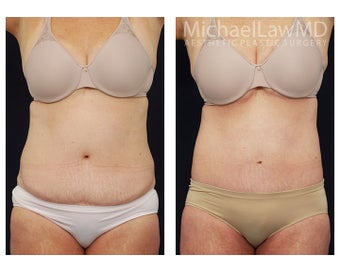 Liposuction before 397124