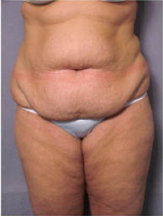 Adominoplasty before 428195