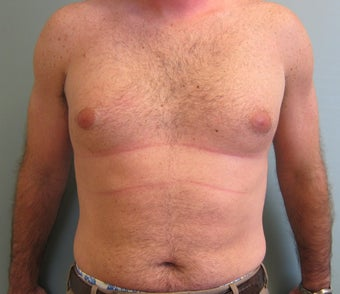 Liposuction of Abdomen, Love handles, Flanks, Chest before 454529