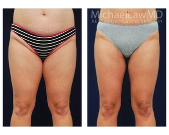 Liposuction before 495064