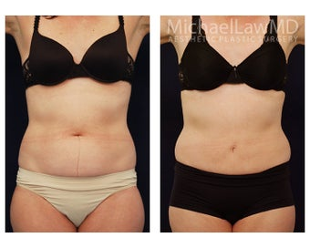 Liposuction before 495519