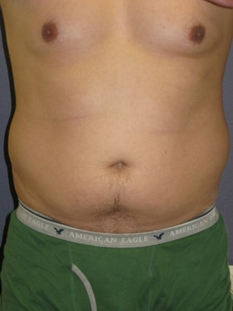 Liposuction Male before 575522