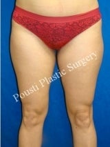 Liposuction before 633674