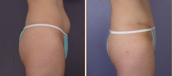 Liposuction before 270014