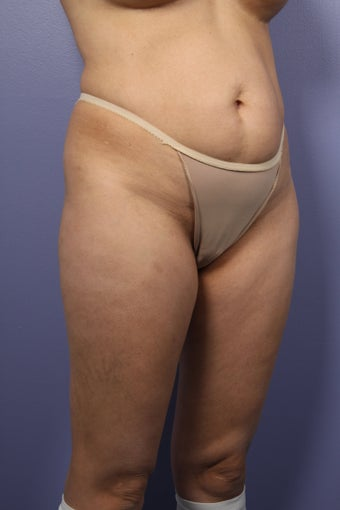 Liposuction: Thighs, Hips, and Abdomen  before 307450