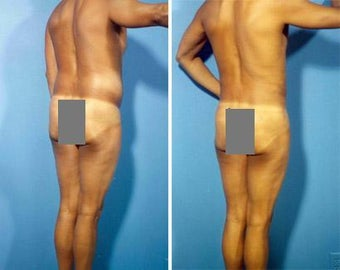 Liposuction before 636096