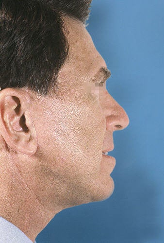 Facelift for Men after 114163