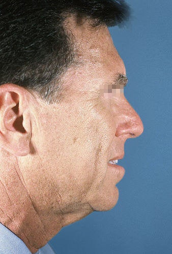 Facelift for Men before 114163