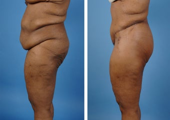 Lower Body Lift with Laser Liposuction to the Hips and Thighs after 335995