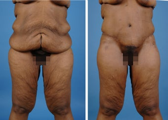 Lower Body Lift with Laser Liposuction to the Hips and Thighs before 335995