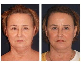 Lower Face and Neck Lift after 355122
