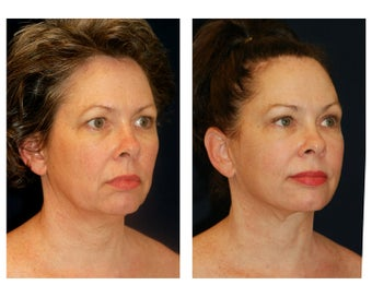 Facial Rejuvenation after 374118