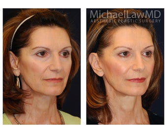 Facial Rejuvenation after 393310
