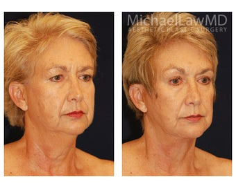 Facial Rejuvenation after 395177