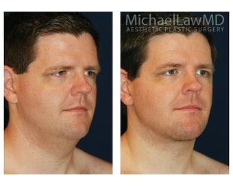 Lower Face and Neck Lift after 395848