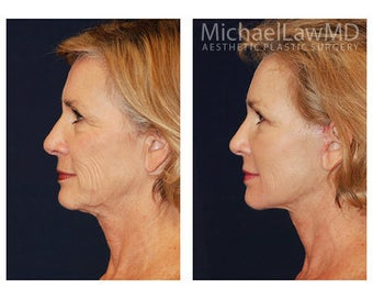 Lower Face and Neck Lift before 355087