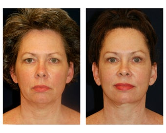 Facial Rejuvenation before 374118