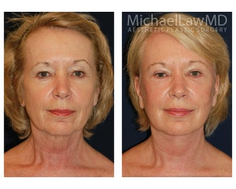 Facial Rejuvenation before 395138