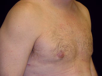 Gynecomastia Reduction Surgery after 236032