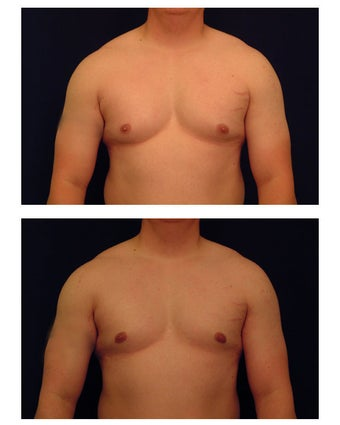 Gynecomastia (Male Breast Reduction) before 149368