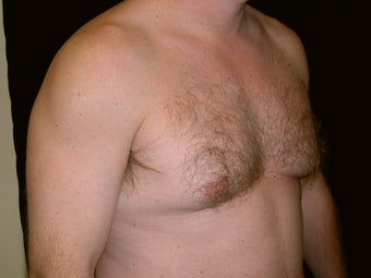 Gynecomastia Reduction Surgery before 236032