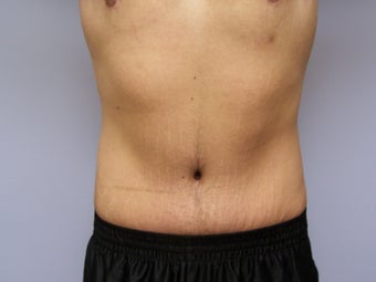 Tummy tuck for a male after 590865