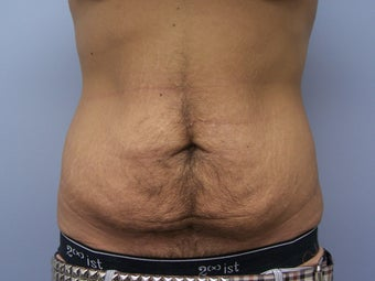 Tummy tuck for a male before 590865