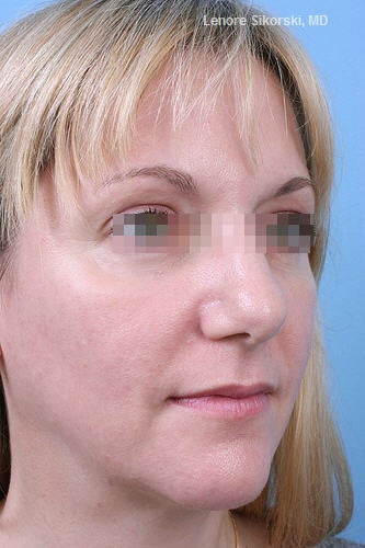 Fractional CO2 Laser Resurfacing after 114175