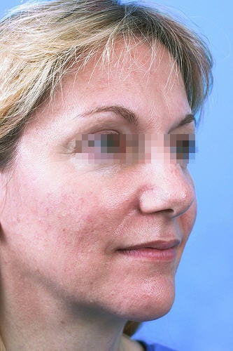 Fractional CO2 Laser Resurfacing before 114175