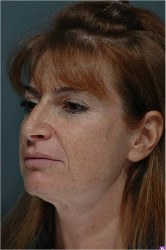 Facelift, Mini-Facelift, Endoscopic Midface Lift, Endoscopic Forehead Lift before 293028