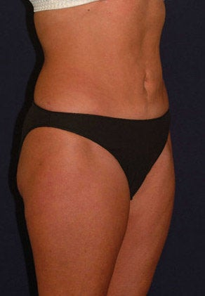 Tummy Tuck / Abdominoplasty after 55020