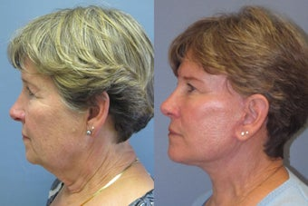 Lite lift, Neck Lift, Brow Lift after 523475