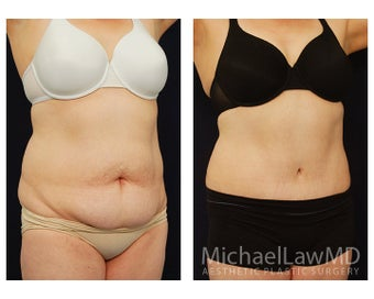 Abdominoplasty - Tummy Tuck after 396085