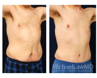Abdominoplasty - Tummy Tuck after 396130