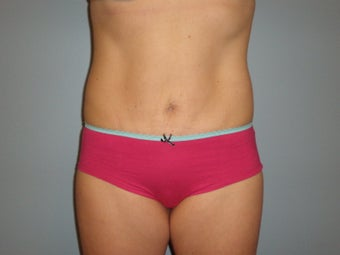 Mini Tummy Tuck  after 459740