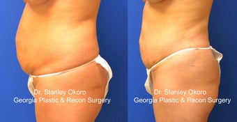 Mini Tummy Tuck after 568405