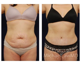 Abdominoplasty - Tummy Tuck before 396135