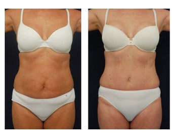 Abdominoplasty - Tummy Tuck before 396160