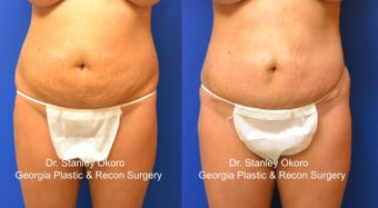Mini Tummy Tuck before 568405