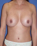 Abdominoplasty and Breast Augmentation Surgery after 124861
